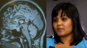 You Won't Belive What Doctors Found In This Woman's Brain