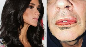 In 5 Words, Tommy Lee's Fiancée Addresses His Violent Brawl With Son