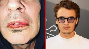 Tommy Lee's Son Breaks Silence After 'Assaulting' His Father…